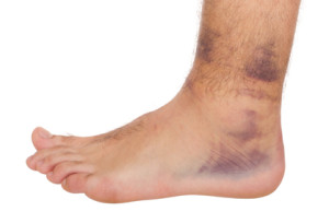 Inversion ankle sprain with strong hematoma